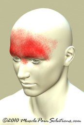 Frontal headache