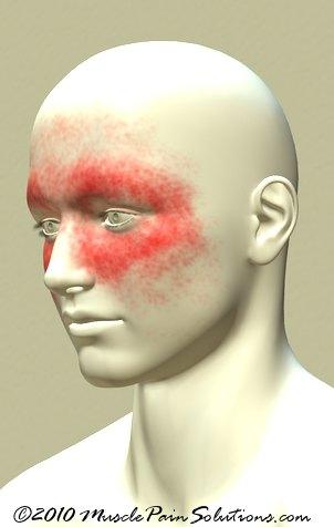 Chronic Sinus Headaches