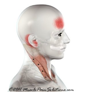 Sternocleidomastoid muscle - clavicular branch
