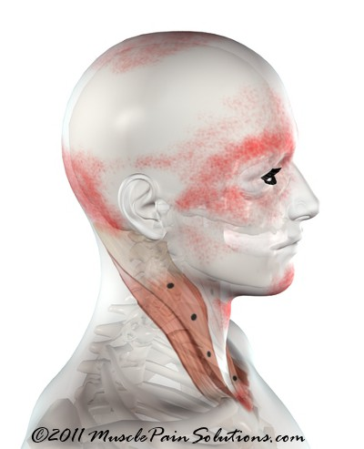 Sternocleidomastoid muscle - sternal branch