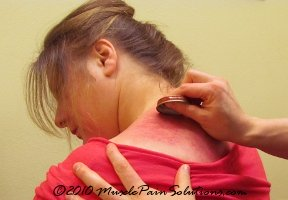 Gua Sha: Breaking up scar tissue